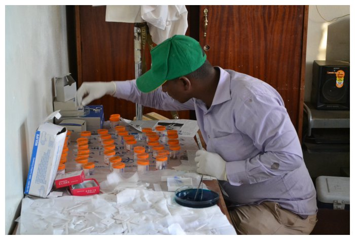 Preparing samples to measure prevalence of worm infections among children in Ethiopia