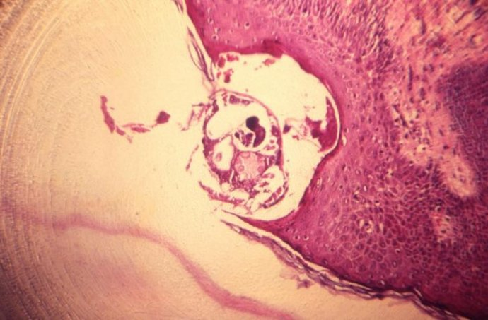 Photomicrograph of scabies burrowed into skin tissue. Credit CDC Public Health Image Library
