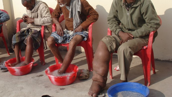 Lymphatic filariasis sufferers. Photo courtesy of LCNTD