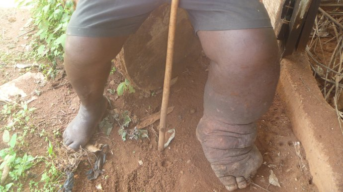 A lymphatic filariasis sufferer in Nigeria