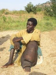 Elephantiasis is a debilitating condition that can result from LF infection. Image courtesy of the Carter Centre.