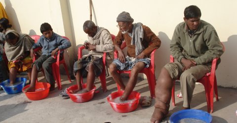 NTDs such as Lymphatic filariasis profoundly disable sufferers abilities to live normal lives. Photo courtesy of LCNTD