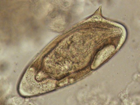 Schistosoma mansoni egg. The miracidium is visible within. Credit Aidan Emery.